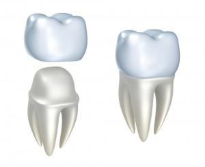Portland-Dental-Crowns