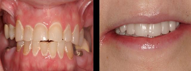 Full-Mouth-Rehabilitation