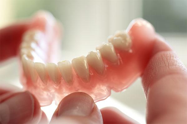 Implant-benefits
