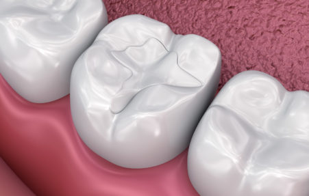 White composite resin dental fillings